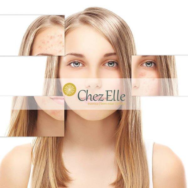 Chez Elle Estética - Agência Digital